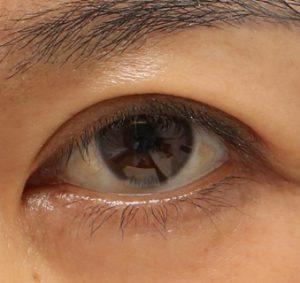 眼瞼下垂術後下三白眼の変化