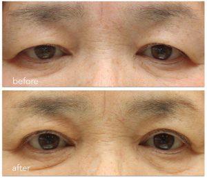眼瞼下垂症手術後の鼻根部の横ジワの写真。