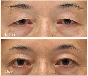 眼瞼下垂術前術後の写真。目尻の重瞼線が二股に