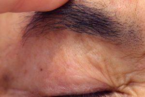 眉下切開による上眼瞼リフトのきずあとの写真