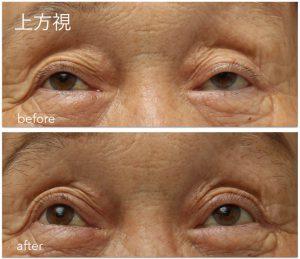 眼瞼下垂手術前後の写真。左は上方視で視野を失っている。余計に上転しているのが分かる。