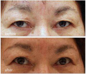 眼瞼下垂術後半年。目の縦幅はせいぜい1mm増えたというところ