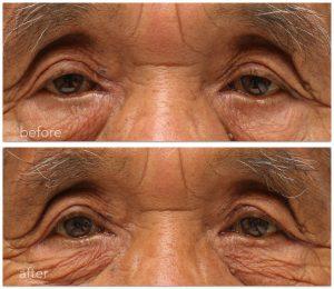 眼瞼下垂術前術後の写真。