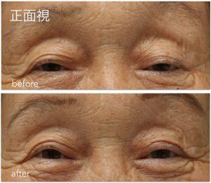 眼瞼下垂手術前後の写真。一生懸命に目を開こうとしていたのが楽に目が開くようになった