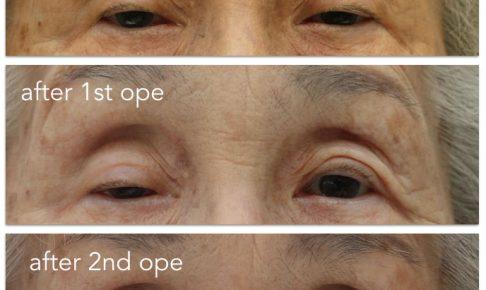 眼瞼下垂術前術後の写真。ヘリングが起きたために二度の手術を行ったのでした。