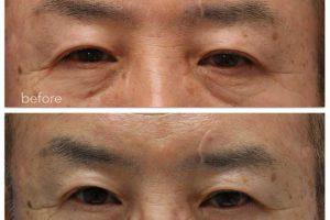 眼瞼下垂術前術後の写真。術前と術後9ヶ月。どちらのまぶたがトラブルにあったか分かりますか?