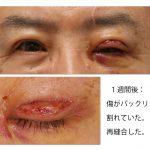 眼瞼下垂術後1週間。痛々しい画像です。クリックすると大きくなります。