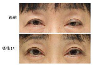 眼瞼下垂治療前後の写真。前転を強める必要はない。