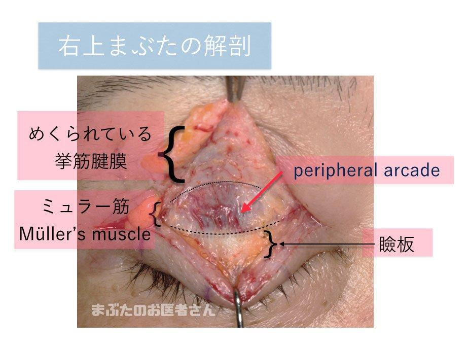眼瞼下垂手術の時の写真 各部の名称