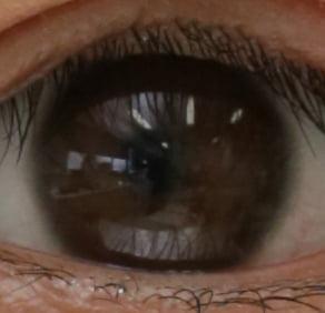 角膜表面の反射