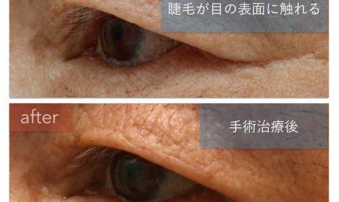 左下眼瞼内反症の治療前後の左斜めからの写真。