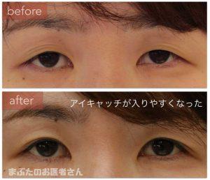 目の光がわずかに増えているのが分かる。