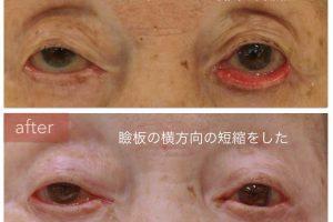 下眼瞼外反賞の治療後