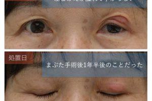 霰粒腫の写真
