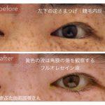 睫毛内反の手術治療前後の写真