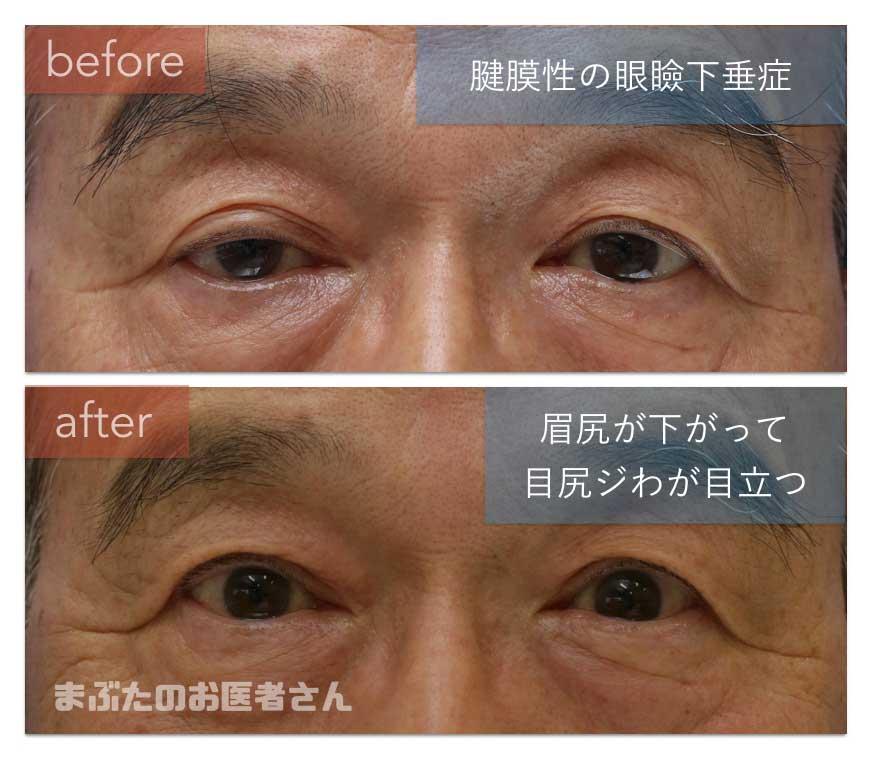 眼瞼下垂治療前後の写真