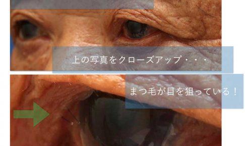 上眼瞼の内反症の写真