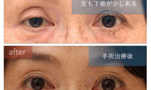 眼瞼下垂術前後の写真