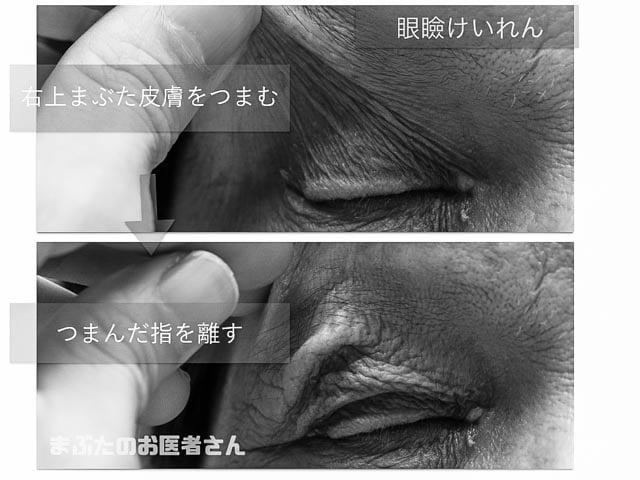眼瞼けいれんの肌の白黒写真