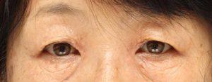 汗管腫の手術前の写真