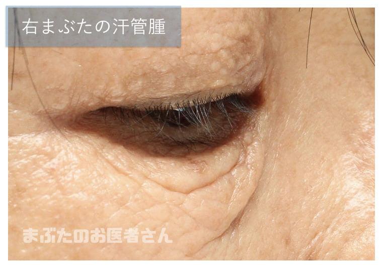 汗管腫の写真