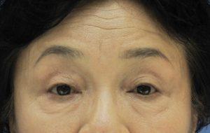 眼瞼下垂症術前の写真