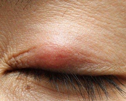 眼瞼術後に生じる霰粒腫