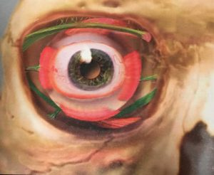 眼球を下から支えるLockwood's靭帯。横方向の緑色のスジ。眼球の上にあるのがWhitnall's靭帯