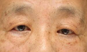 眼瞼下垂術前の写真