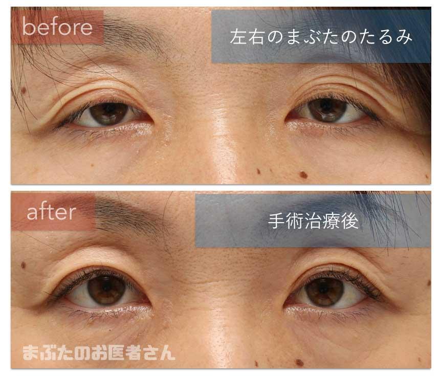 眼瞼下垂術後一年