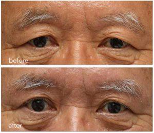 眉下切開の上眼瞼リフト 術前術後写真