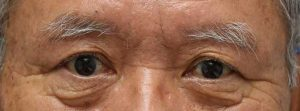 上眼瞼リフト術後