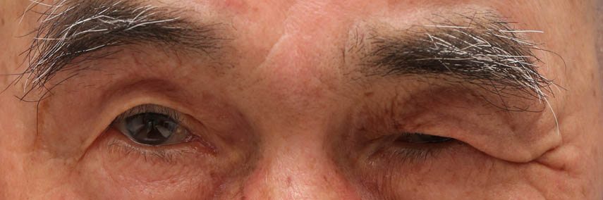 顔面神経麻痺後遺症瞼裂狭小術前