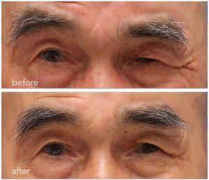 顔面神経麻痺後遺症。治療前後写真。