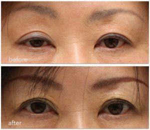 眼瞼下垂術前術後の写真。左右差のある眼瞼下垂症を治療した後の写真