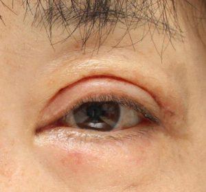 眼瞼下垂術後2週間の写真