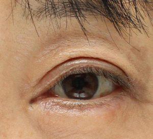 眼瞼下垂術後4週間の写真。内出血も綺麗に退いた。