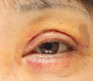 眼瞼下垂術後1週間の写真。腫れたまぶた。紫斑もある。