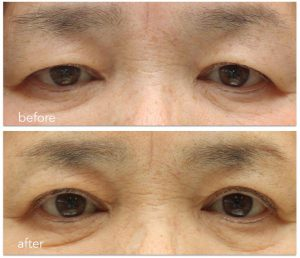眼瞼下垂症手術後の鼻根部の横ジワの写真