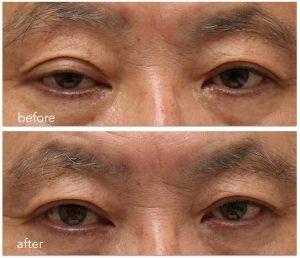 ホルネル症候群治療前後。眼瞼下垂症手術前後の写真