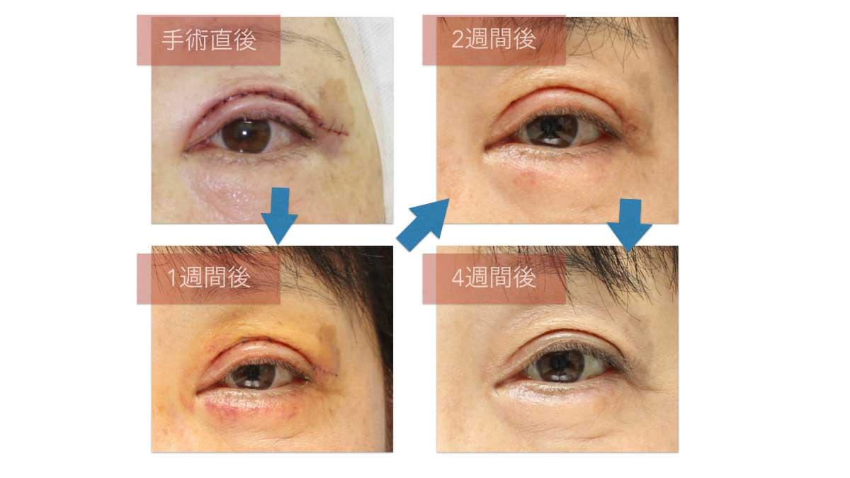 眼瞼下垂術後の紫斑