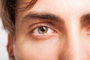 男性目尻の重瞼線
