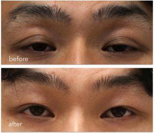 眼瞼下垂手術後before-afterの写真