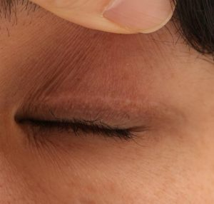 眼瞼下垂術後の切開瘢痕の色の抜けの写真