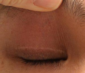 切開瘢痕の色の抜け 眼瞼下垂術後の写真