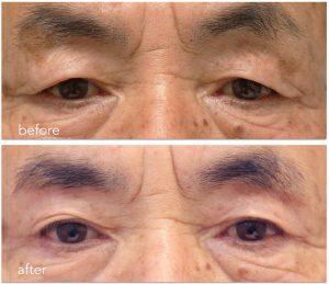 眼瞼下垂症に対する上眼瞼リフトの術前術後写真