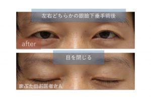 眼瞼下垂手術後の写真