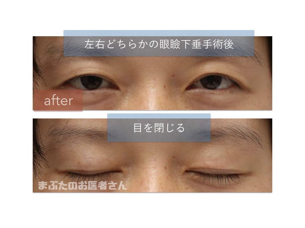 眼瞼下垂症で、右だけ手術しても見かけがおかしくならないかな