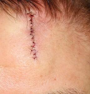 手術直後。ジグザグの線になっている。