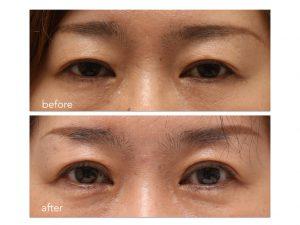 眼瞼下垂症手術。術前術後の写真。
